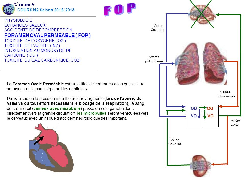 F O P FORAMEN OVAL PERMEABLE ( FOP ) PHYSIOLOGIE ECHANGES GAZEUX