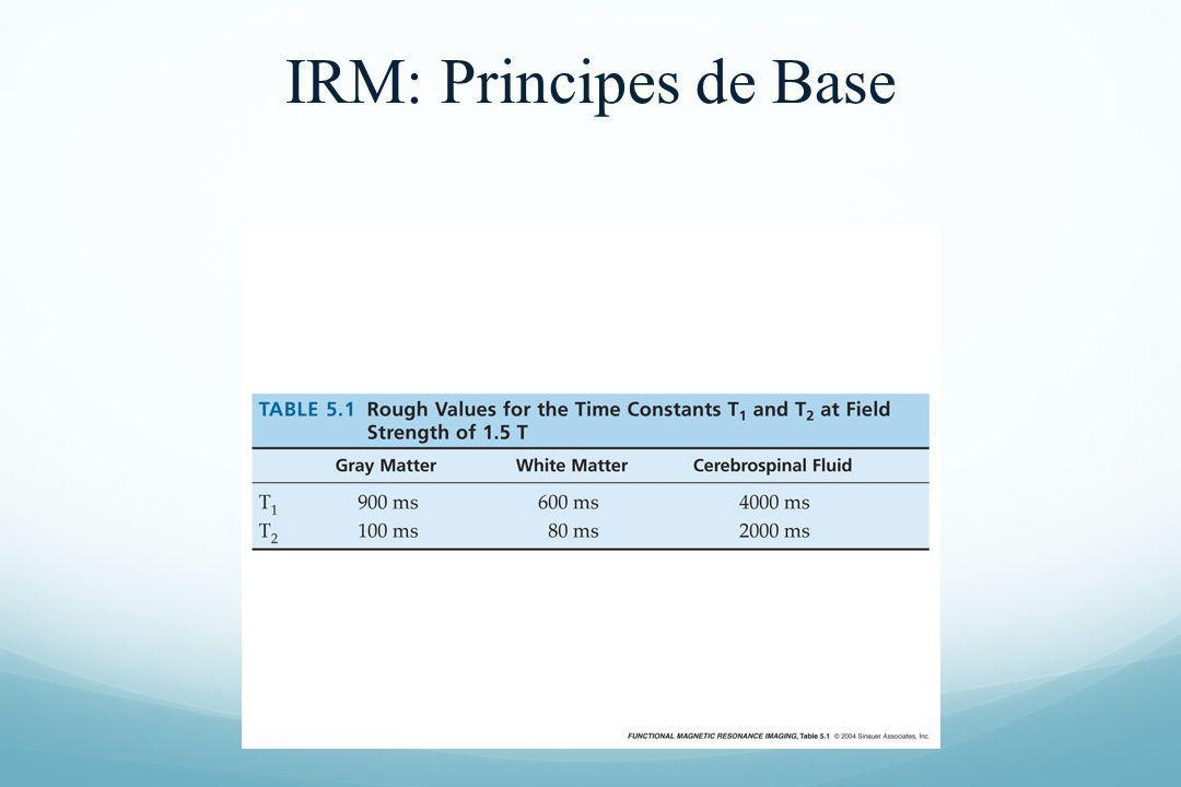 IRM: Principes de Base