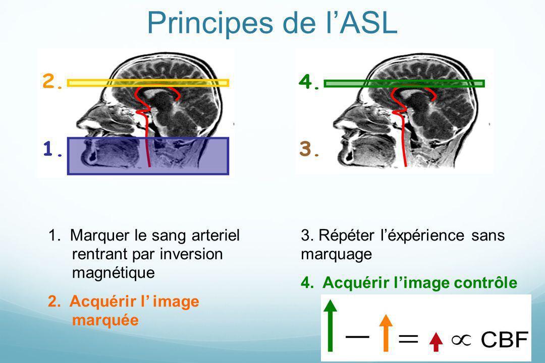 Principes de l'ASL1. Marquer le sang arteriel rentrant par inversion magnétique. 2. Acquérir l' image marquée.