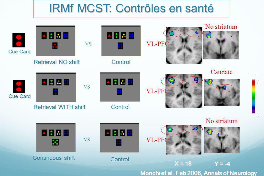 IRMf MCST: Contrôles en santé