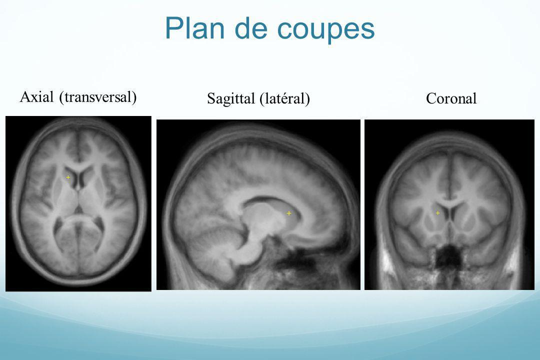 Plan de coupes Axial (transversal) Sagittal (latéral) Coronal