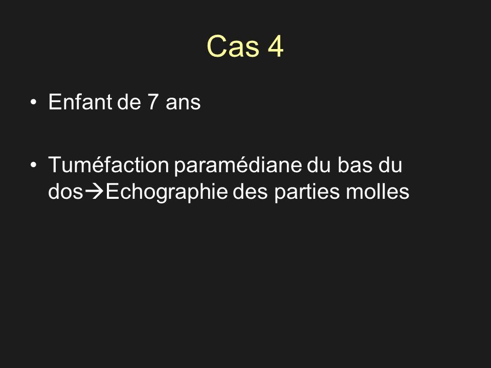 Cas 4 Enfant de 7 ans Tuméfaction paramédiane du bas du dosEchographie des parties molles