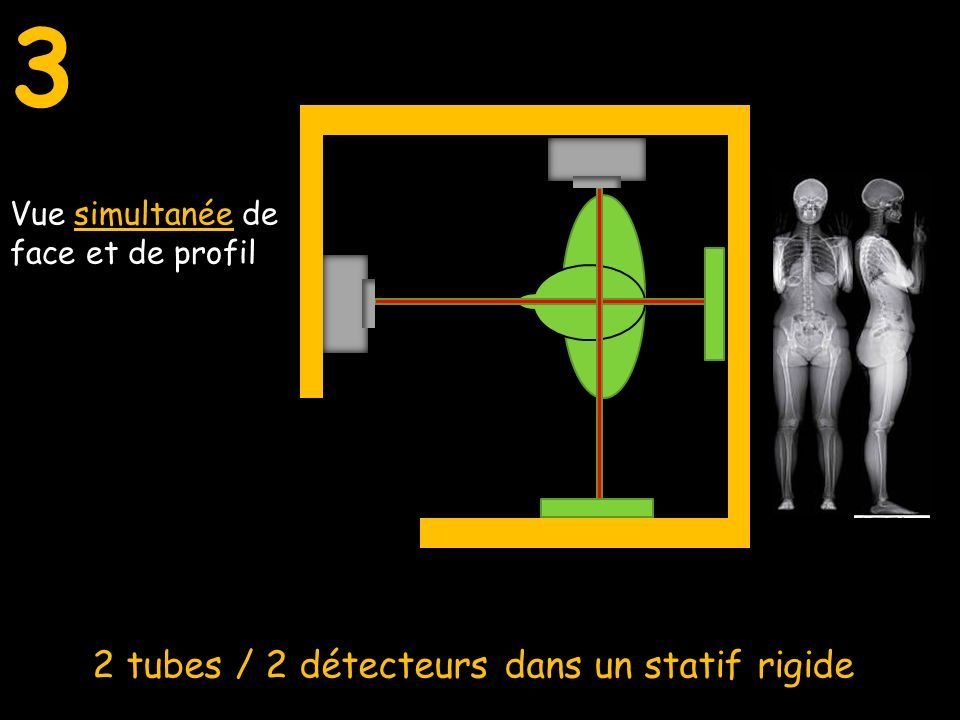 3 2 tubes / 2 détecteurs dans un statif rigide Vue de face