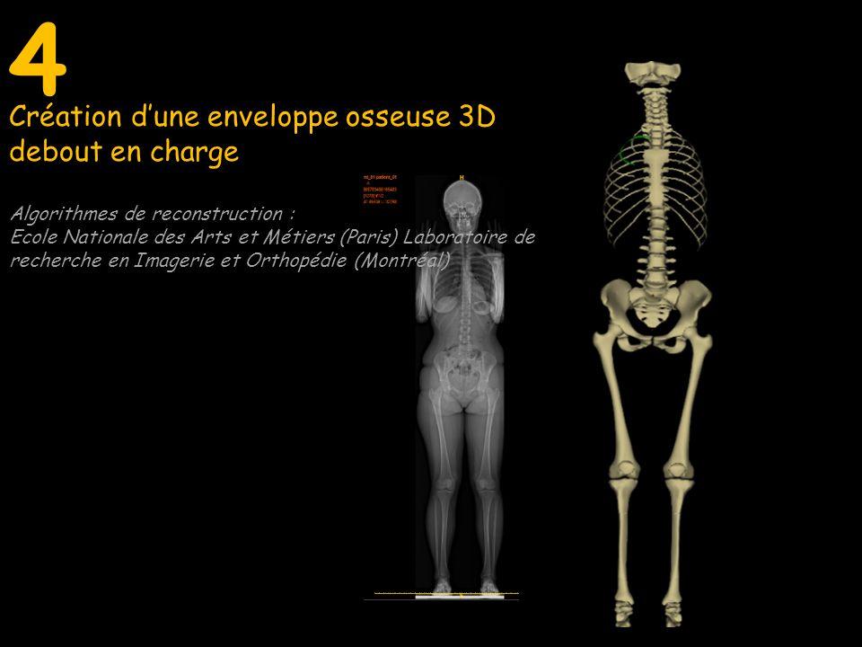 4 Création d'une enveloppe osseuse 3D debout en charge