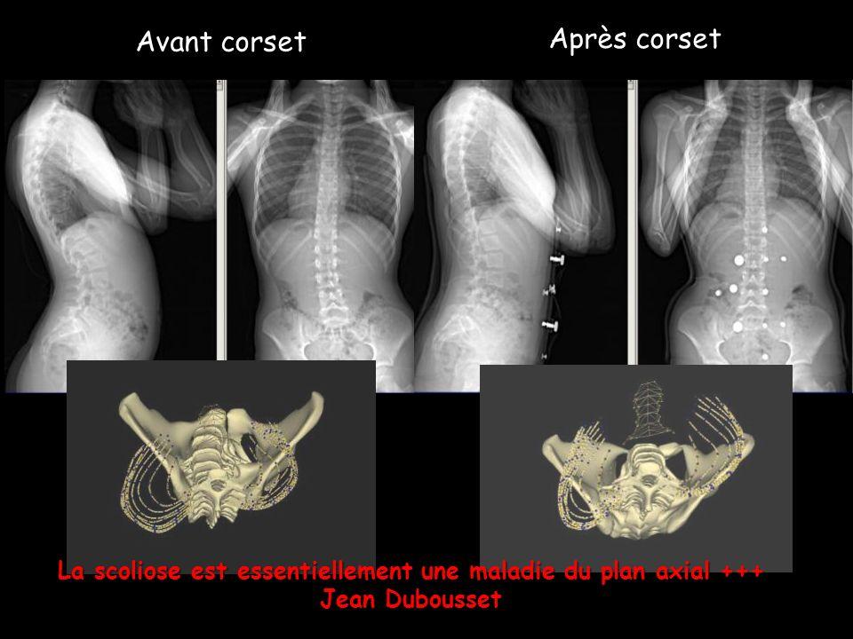 La scoliose est essentiellement une maladie du plan axial +++