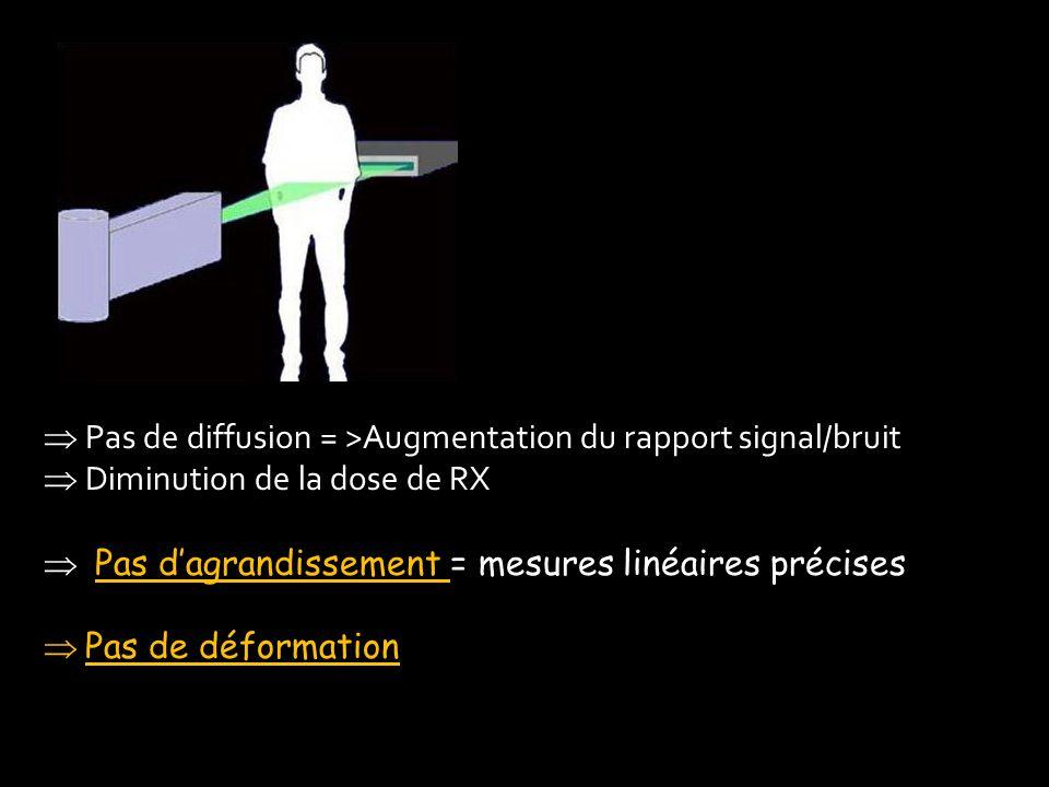 Pas de diffusion = >Augmentation du rapport signal/bruit