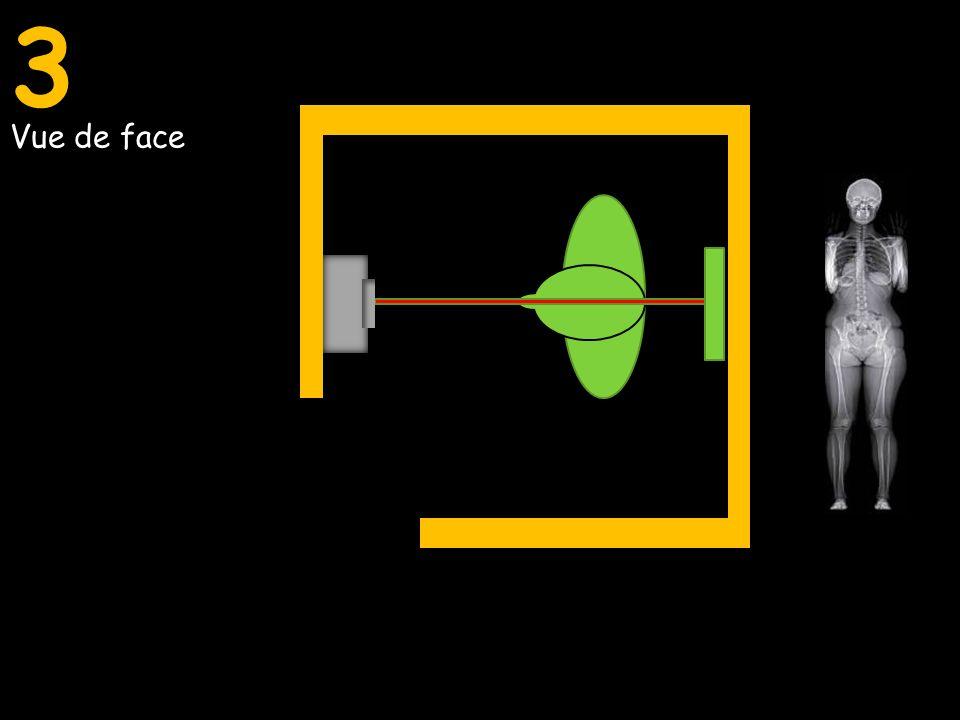 3 Vue de face Vue de profil Vue de face et de profil simultanée