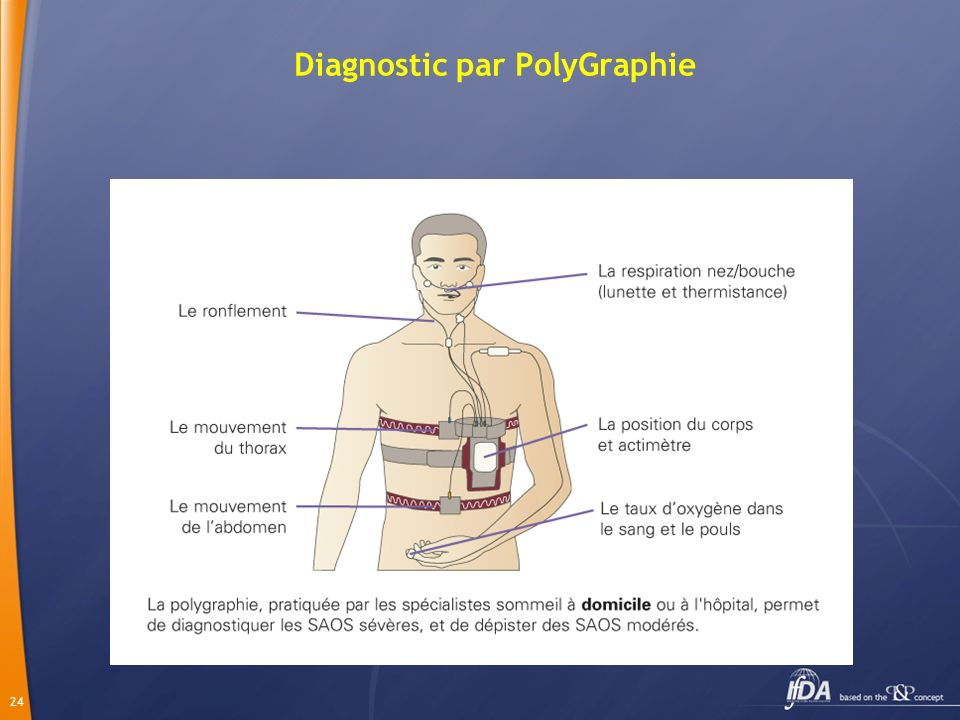 Diagnostic par PolyGraphie