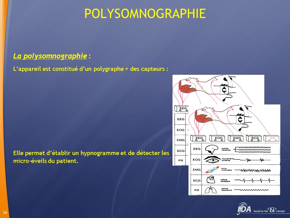 POLYSOMNOGRAPHIE La polysomnographie :
