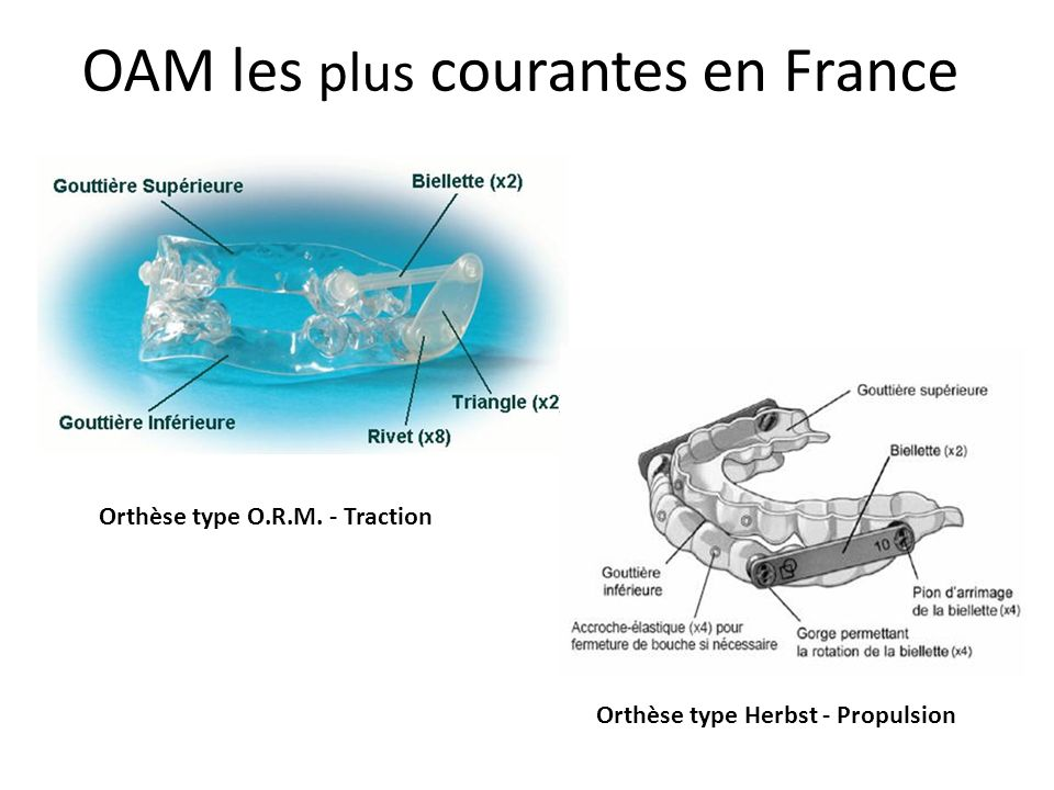 OAM les plus courantes en France