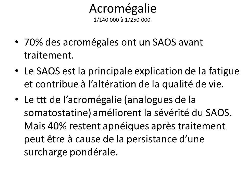 Acromégalie 1/140 000 à 1/250 000. 70% des acromégales ont un SAOS avant traitement.