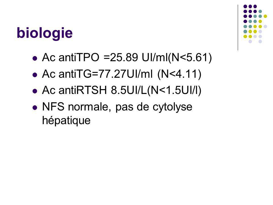 biologie Ac antiTPO =25.89 UI/ml(N<5.61)