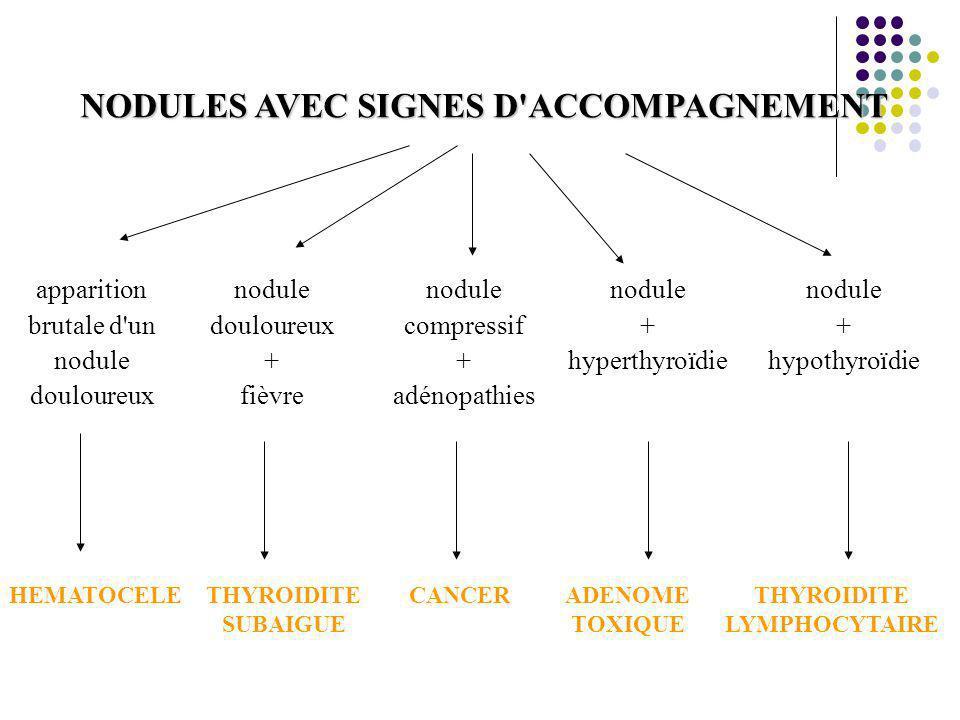 NODULES AVEC SIGNES D ACCOMPAGNEMENT THYROIDITE LYMPHOCYTAIRE