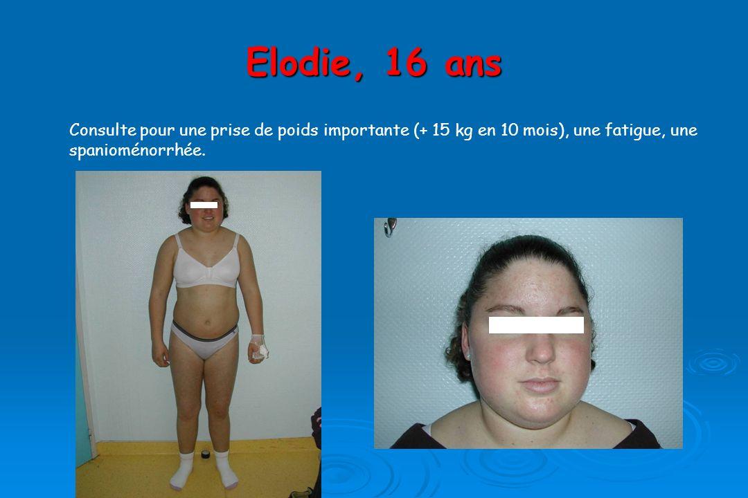 Elodie, 16 ans Consulte pour une prise de poids importante (+ 15 kg en 10 mois), une fatigue, une spanioménorrhée.