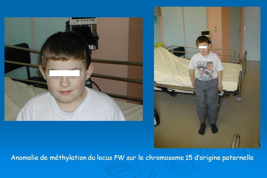 Anomalie de méthylation du locus PW sur le chromosome 15 d'origine paternelle