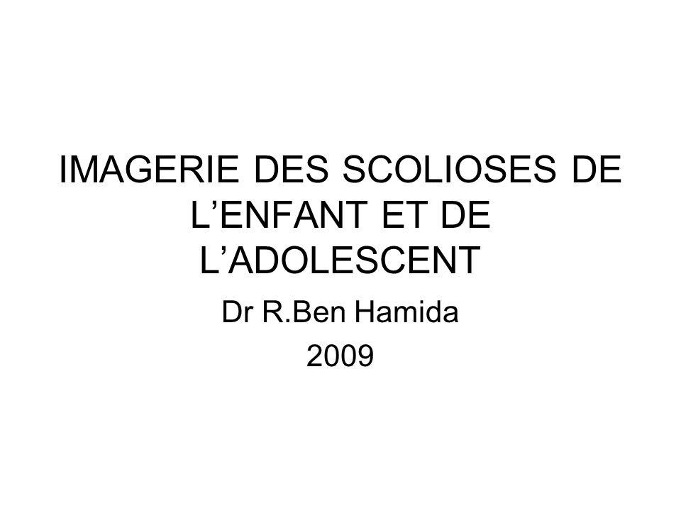 IMAGERIE DES SCOLIOSES DE L'ENFANT ET DE L'ADOLESCENT