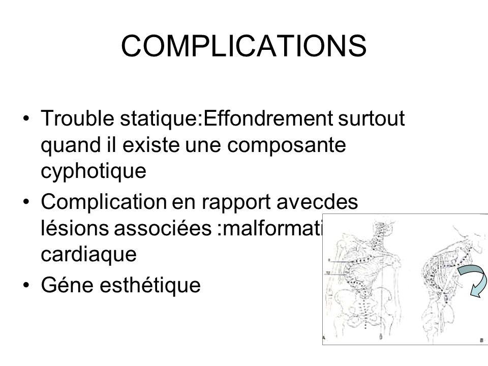 COMPLICATIONS Trouble statique:Effondrement surtout quand il existe une composante cyphotique.