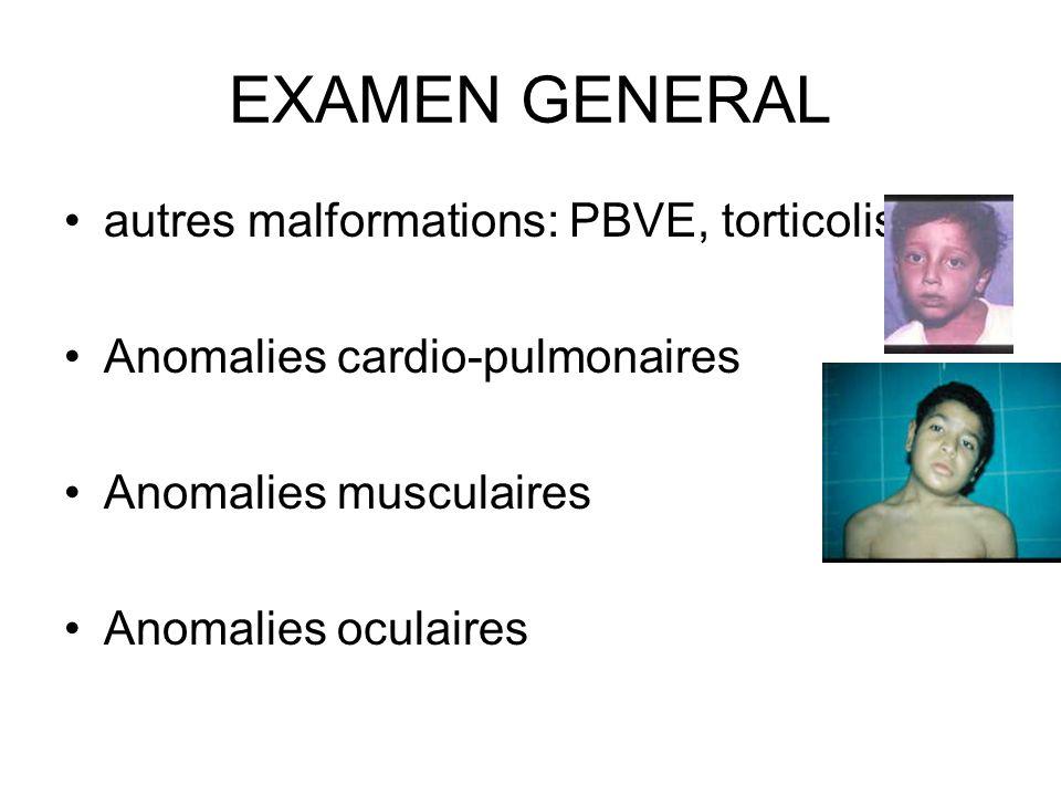 EXAMEN GENERAL autres malformations: PBVE, torticolis