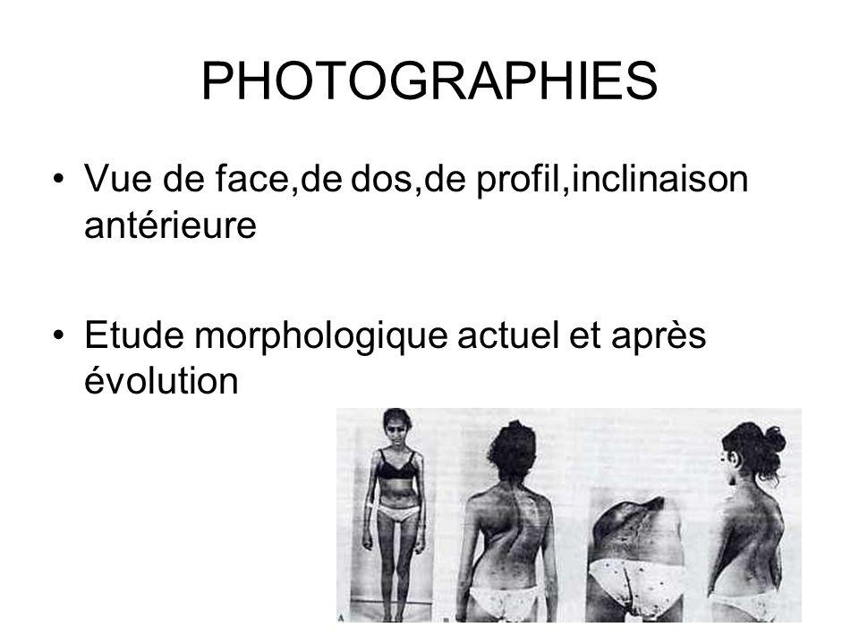 PHOTOGRAPHIES Vue de face,de dos,de profil,inclinaison antérieure