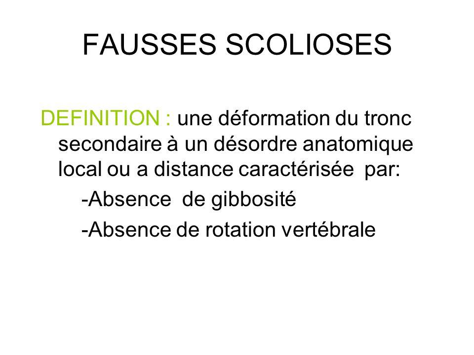 FAUSSES SCOLIOSES DEFINITION : une déformation du tronc secondaire à un désordre anatomique local ou a distance caractérisée par: