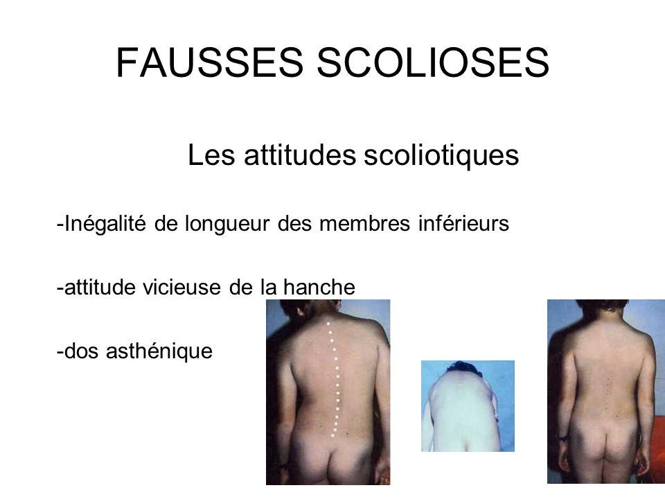 FAUSSES SCOLIOSES Les attitudes scoliotiques