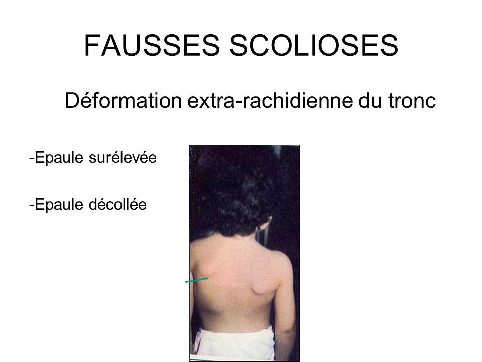 FAUSSES SCOLIOSES Déformation extra-rachidienne du tronc