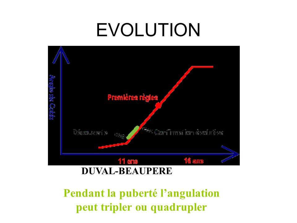 Pendant la puberté l'angulation peut tripler ou quadrupler