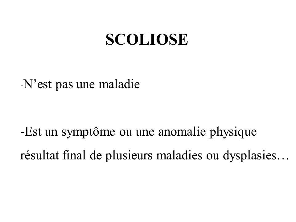 SCOLIOSE -Est un symptôme ou une anomalie physique