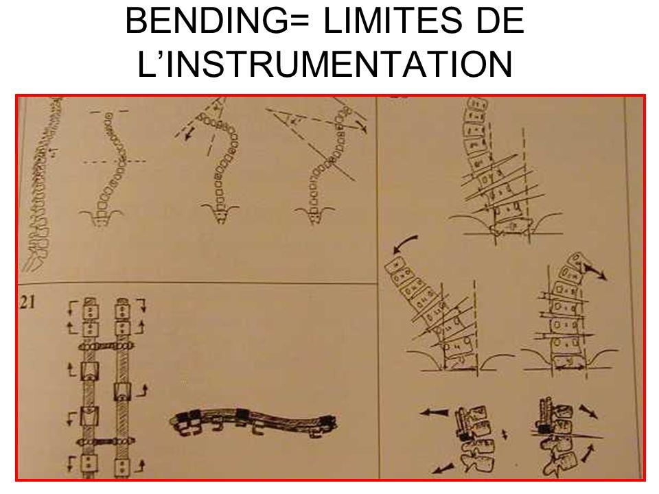 BENDING= LIMITES DE L'INSTRUMENTATION