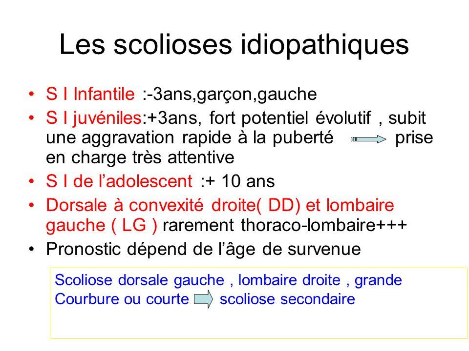 Les scolioses idiopathiques