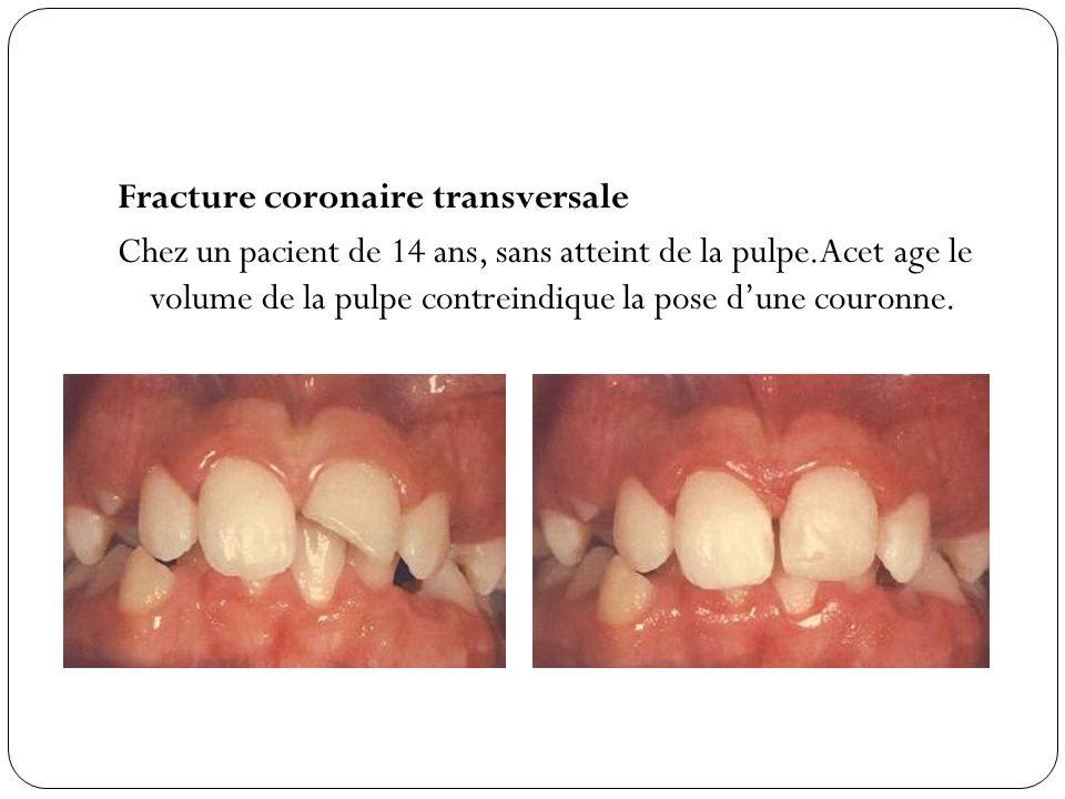 Fracture coronaire transversale Chez un pacient de 14 ans, sans atteint de la pulpe.Acet age le volume de la pulpe contreindique la pose d'une couronne.