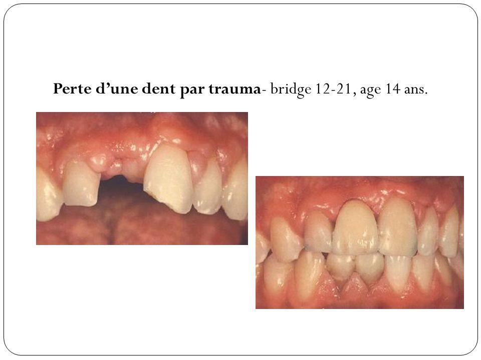 Perte d'une dent par trauma- bridge 12-21, age 14 ans.
