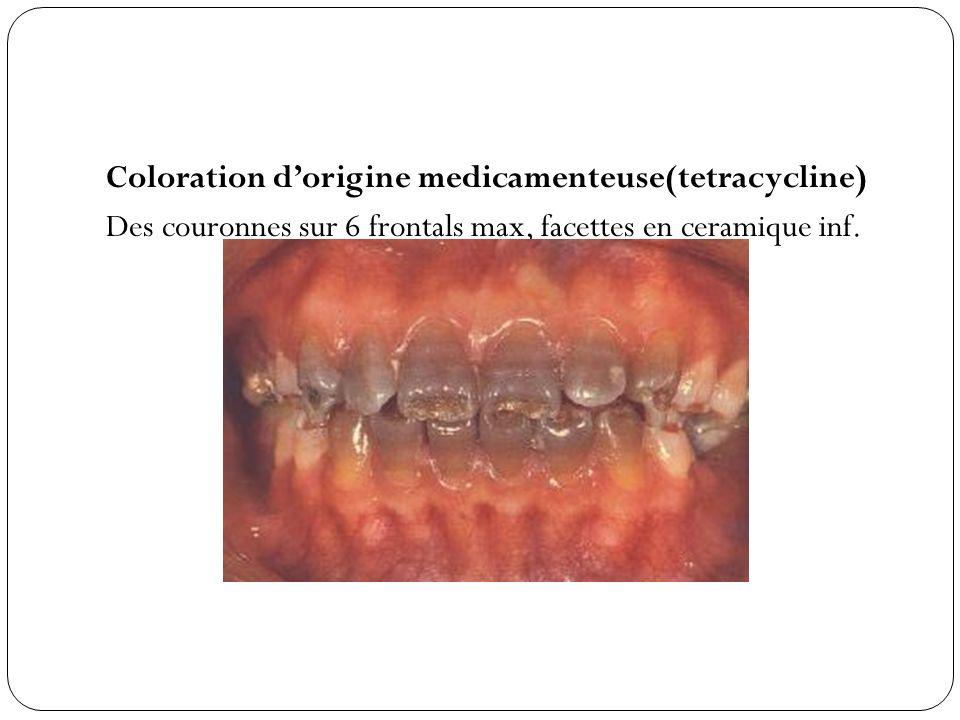 Coloration d'origine medicamenteuse(tetracycline) Des couronnes sur 6 frontals max, facettes en ceramique inf.