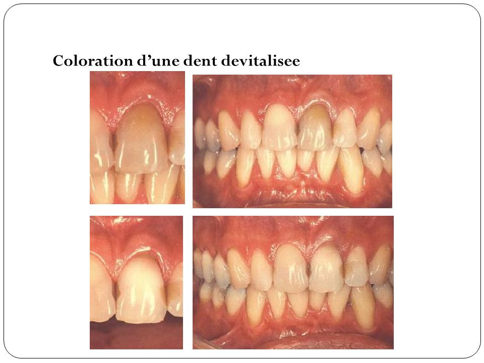 Coloration d'une dent devitalisee