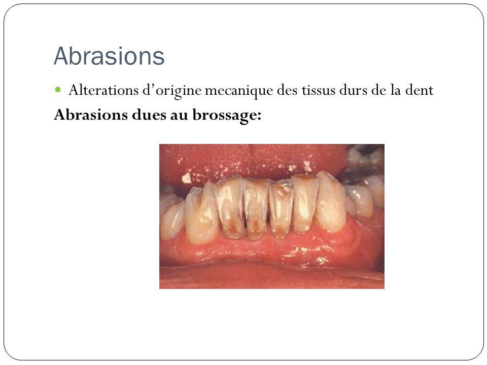 Abrasions Alterations d'origine mecanique des tissus durs de la dent