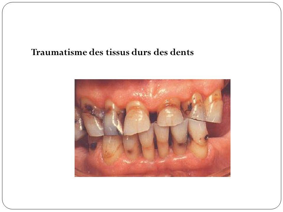 Traumatisme des tissus durs des dents