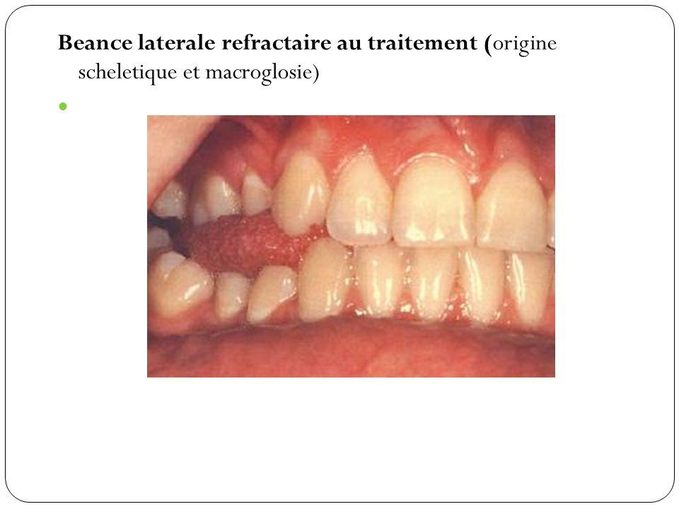 Beance laterale refractaire au traitement (origine scheletique et macroglosie)
