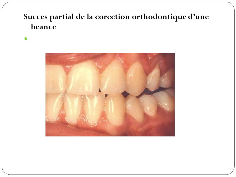 Succes partial de la corection orthodontique d'une beance