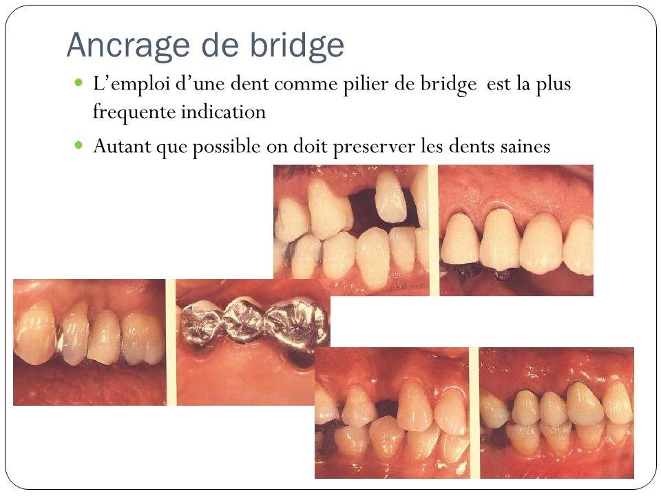 Ancrage de bridge L'emploi d'une dent comme pilier de bridge est la plus frequente indication.