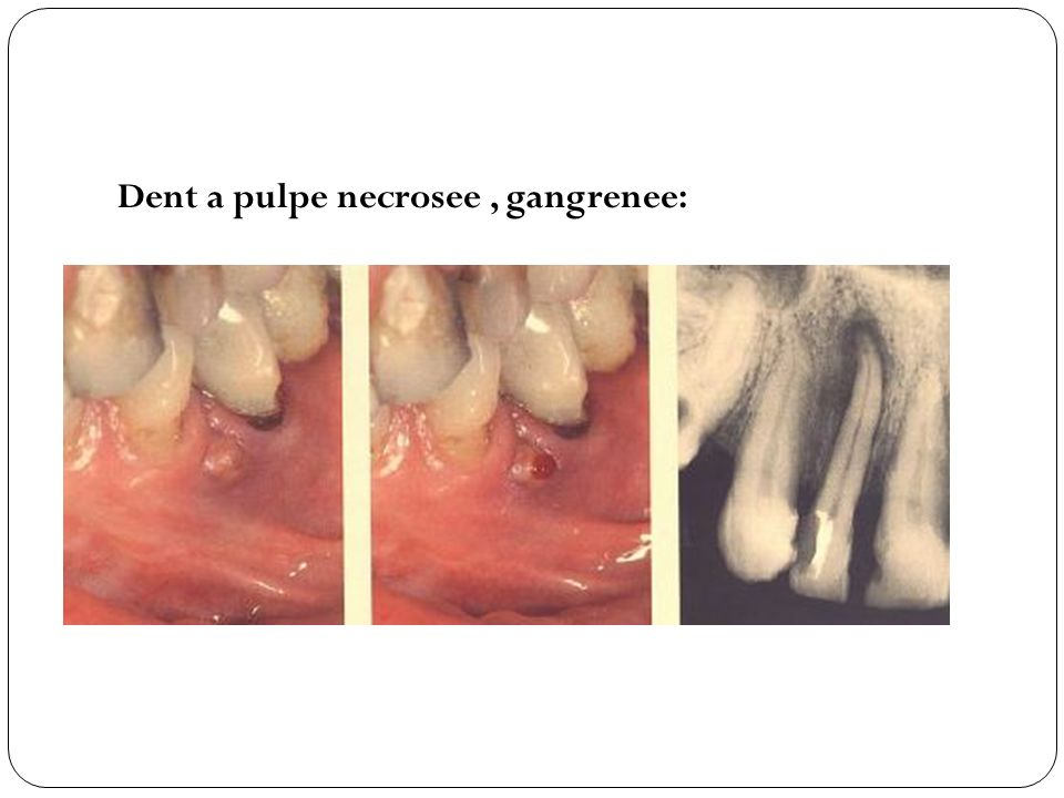Dent a pulpe necrosee , gangrenee: