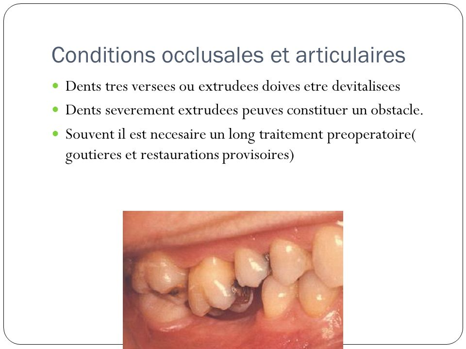 Conditions occlusales et articulaires