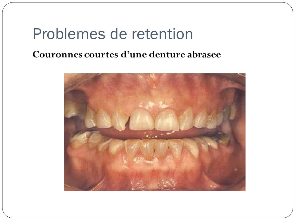 Problemes de retention