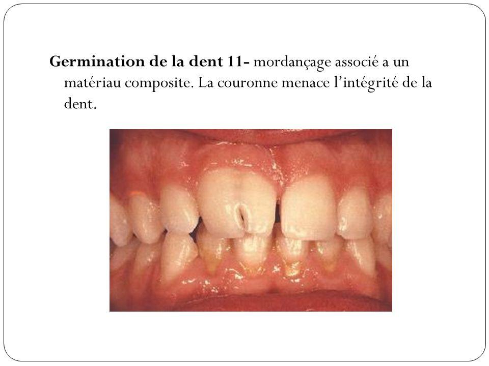 Germination de la dent 11- mordançage associé a un matériau composite
