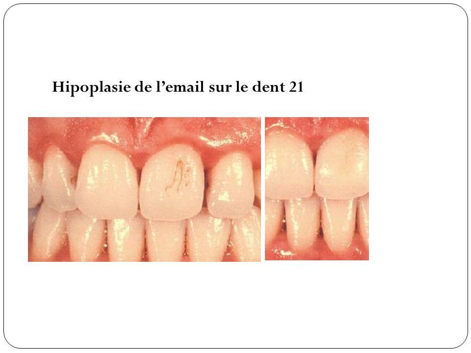 Hipoplasie de l'email sur le dent 21