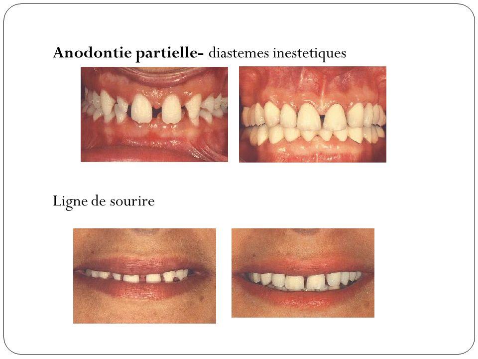 Anodontie partielle- diastemes inestetiques Ligne de sourire