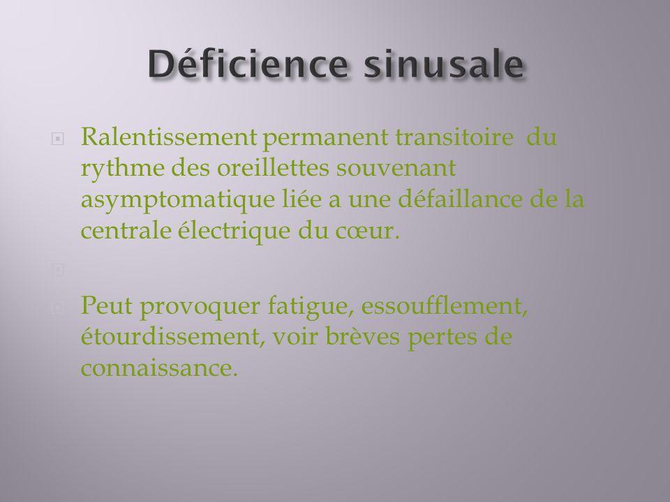 Déficience sinusale