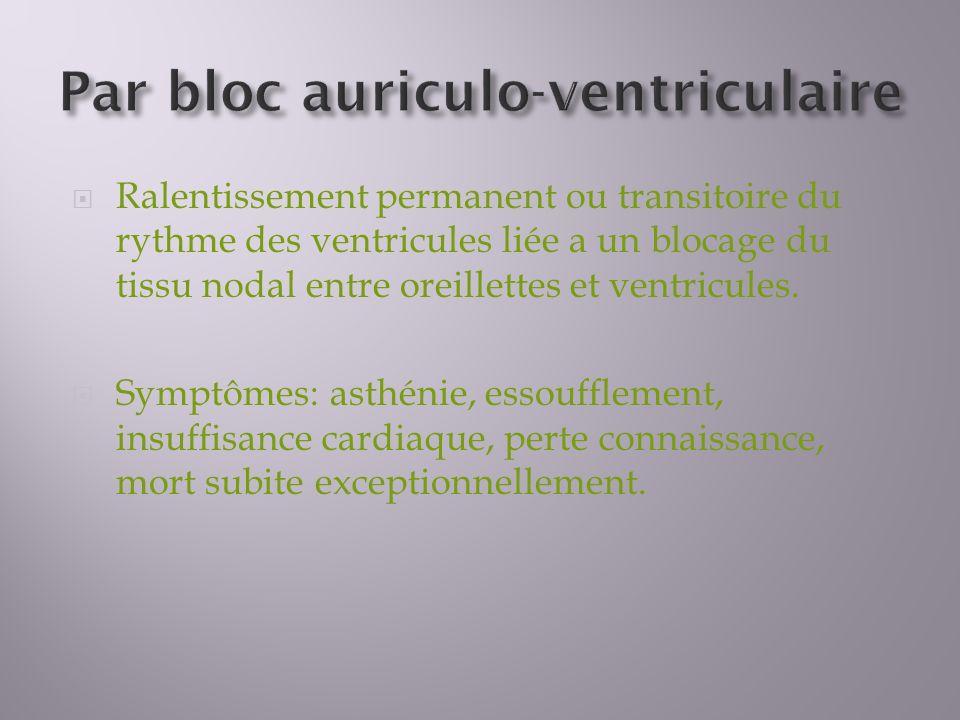 Par bloc auriculo-ventriculaire
