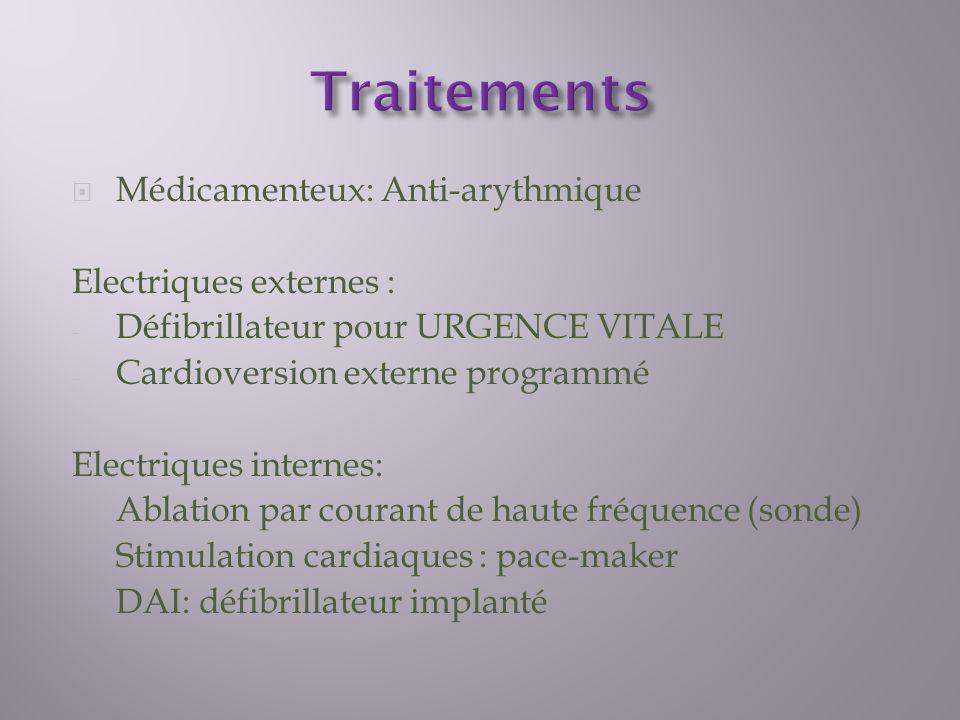 Traitements Médicamenteux: Anti-arythmique Electriques externes :