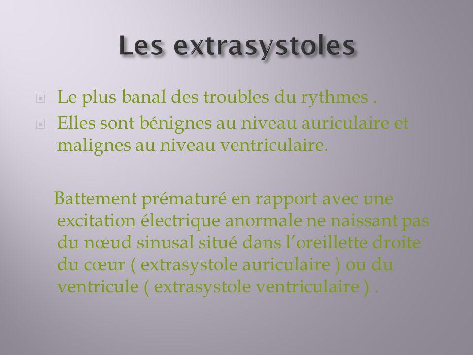 Les extrasystoles Le plus banal des troubles du rythmes .