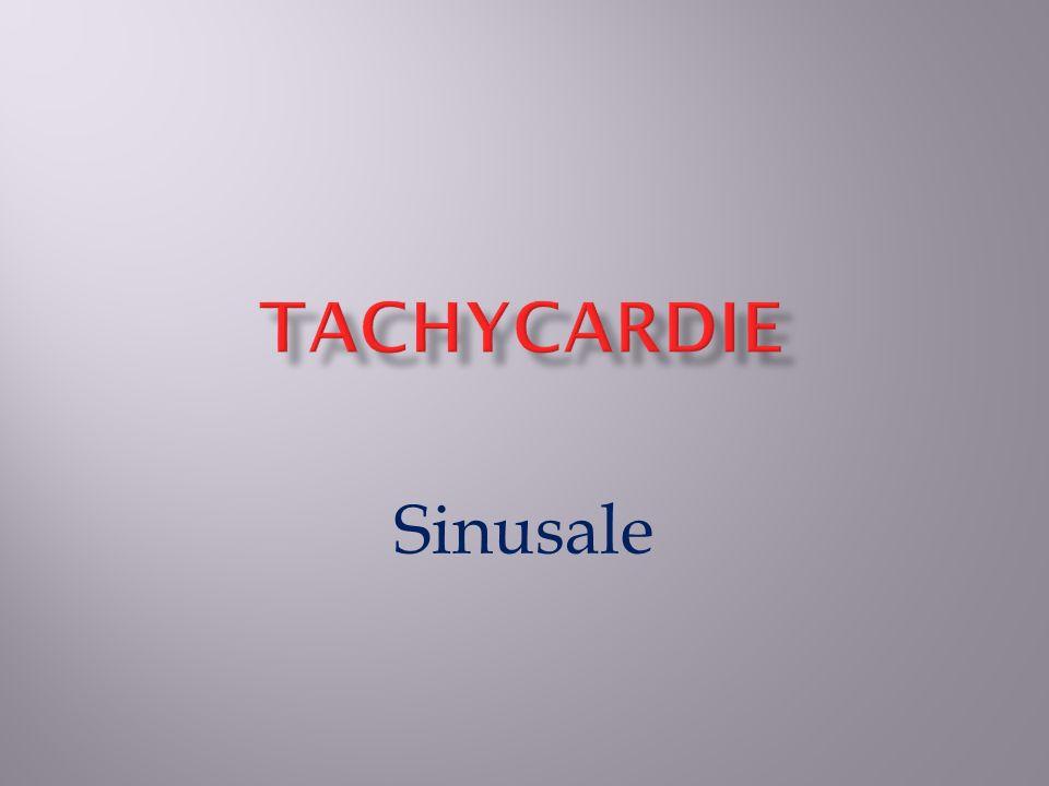 Tachycardie Sinusale